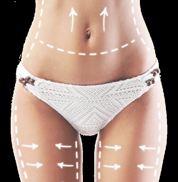 <span> Ver </span> Vídeo liposución lipedema